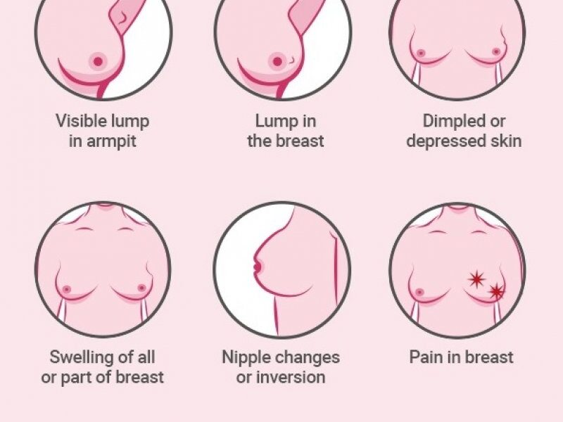 Waiting for Death: Woman suffering from breast cancer declares